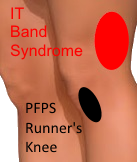 PFPS_Runners_Knee